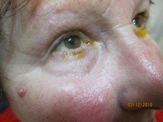 Ostruzioni Vie Lacrimali Adulto 4
