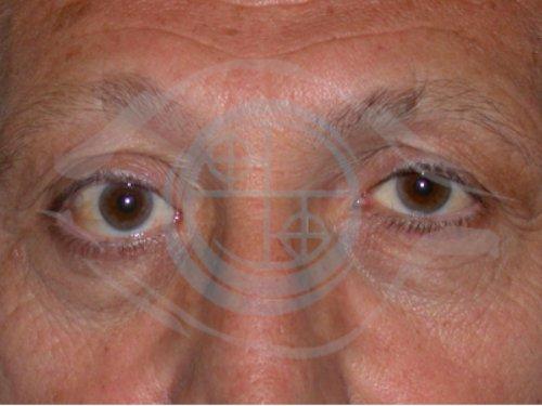 Tumore Ghiandola Lacrimale 3