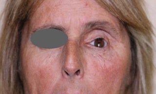 Ricostruzione della Cavità Anoftalmica 1 - Dr. F. Bernardini