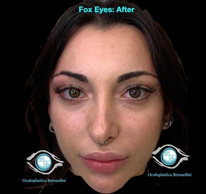 fox eyes 2