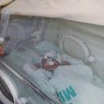 Maternidade Escola Santa Mônica realiza campanha para arrecadação de vidros