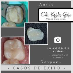 Espacio dental consultorio odontológico Karla Gori Bogotá Colombia incrustraciones cerámica