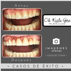 gingivectomia-karla-gori-odontologia-colombia-bogota-cedritos-foto