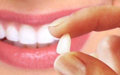 Sabe a Diferença Entre Facetas e Lentes Dentárias?