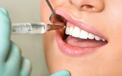 Anestesia Local Odontológica