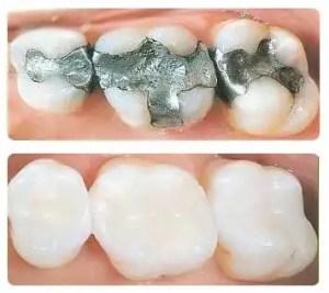 resinas dentales por amalgamas