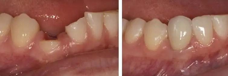 coronas dentales diente fracturado
