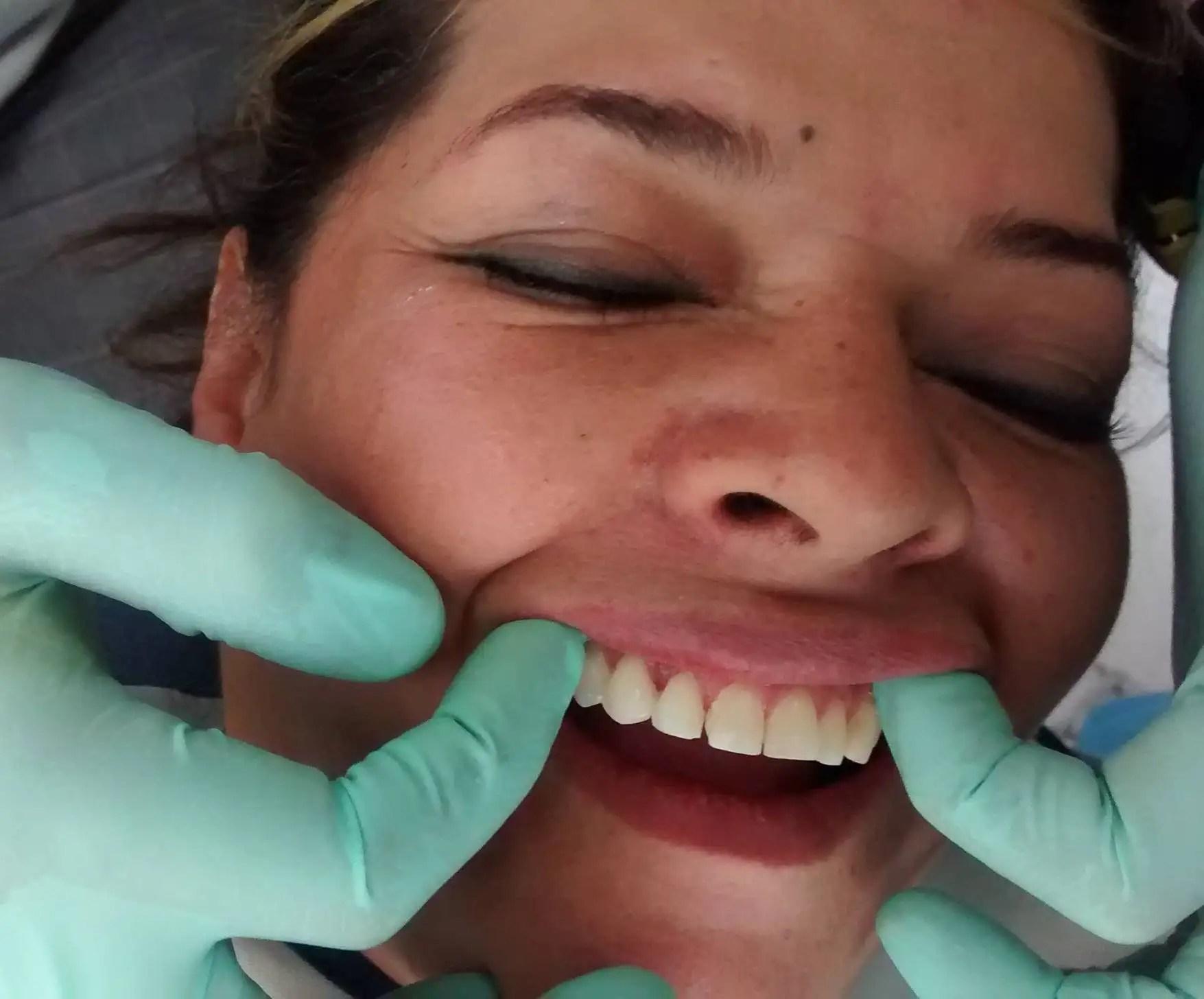 odontologo medellin odontologia estetica