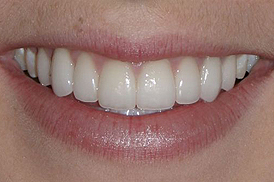 carillas dental porcelana estetica medellin despues