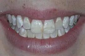 Odontología estética antes después Medellín