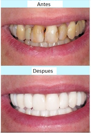 casos odontologia coronas dentales antes y despues
