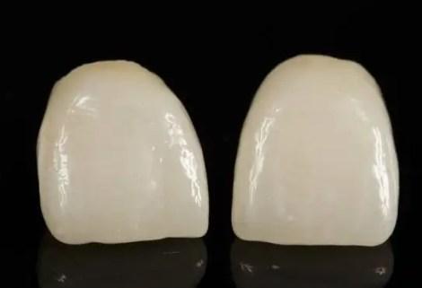 coronas dentales en porcelana sin metal