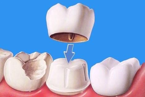 Coronas-dentales que es corona dental