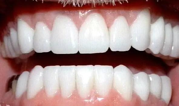 corona dental porcelana que es corona dental