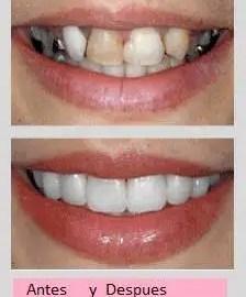 odontologia estética medellin odontologo estetico medellin