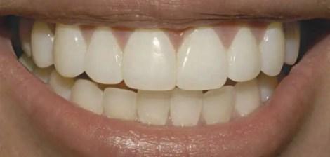coronas dentales zirconio Medellin corona porcelana