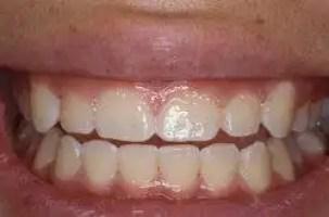 blanqueamiento dental medellin caso antes 2