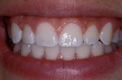 blanqueamiento dental medellin caso despues