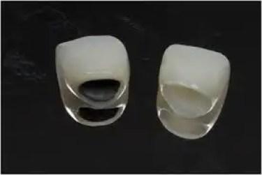 Coronas dentales porcelana zirconio