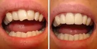 Enderezar dientes torcidos sin ortodoncia caso despues
