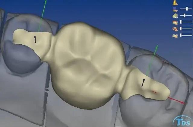 Puente dental Maryland