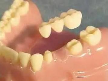 puente dental fijo porcelana puente zirconio