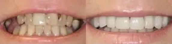 odontologia-medellin-diseno-de-sonrisa-caso-antes-despues-11