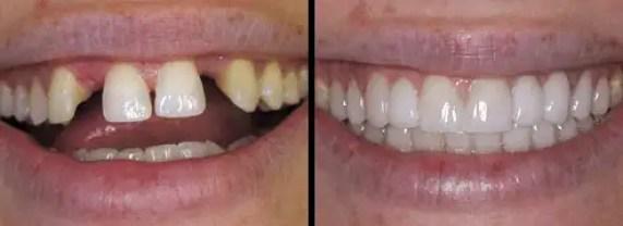 Puente-dental-porcelana-fijo-Medellin-Colombia