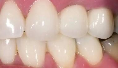 Puente-dental-fijo-zirconio-despues