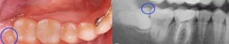 extraccion-cordales-molar