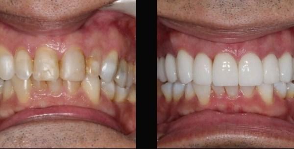 Diseño de Sonrisa antes y después