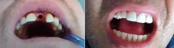 Implante dental antes después Medellín Colombia