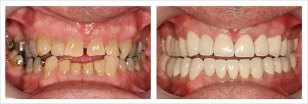 Diseño de sonrisa Medellin dientes dañados antes después