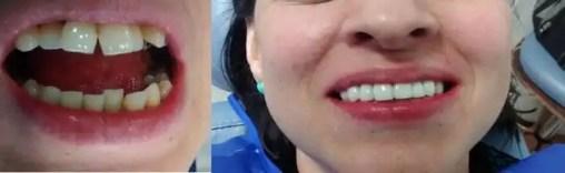 Enderezar los dientes torcidos sin ortodoncia