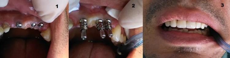 Implante dental antes despues Odontología Medellin Colombia