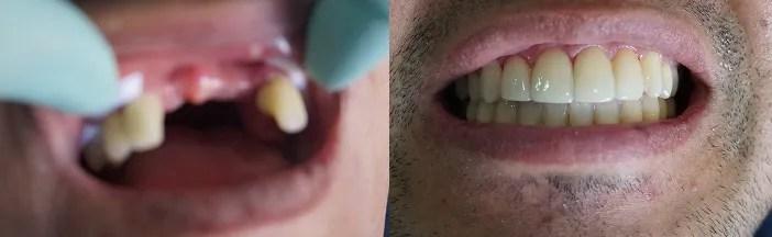 Injerto óseo e Implantes dentales antes después Medellin Colombia