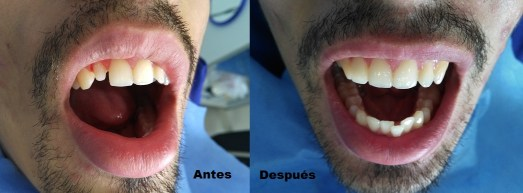 Corona dental antes después Medellin Colombia