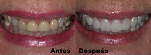 Carillas dentales antes después Medellin