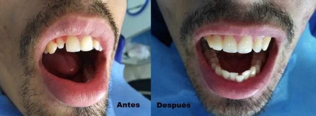 Coronas dentales zirconio Colombia Medellin
