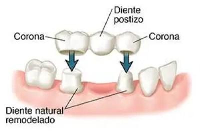 Puente dental que es