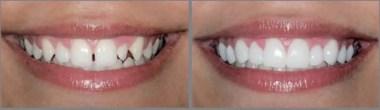 Diseño de sonrisa antes después