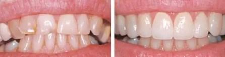 Carillas dentales porcelana Medellin Colombia fotos