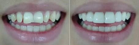 Carillas-dentales-fotos-antes-después
