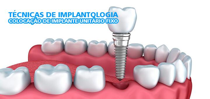 Técnicas de Implantologia