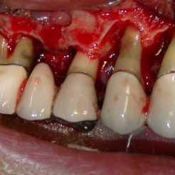 Curetaje óseo en enfermedades periodontales