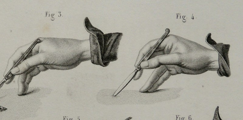 """""""How to use a scalpel print"""" from Etsy seller AntiquePrintsOnly"""