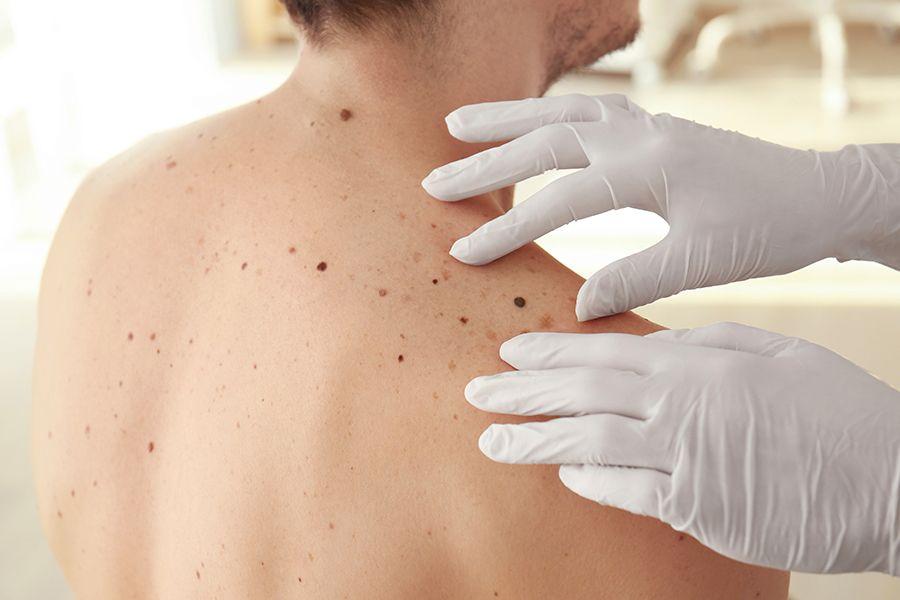 El Instituto Valenciano de Dermatología revisará gratuitamente la salud de la piel #Euromelanoma