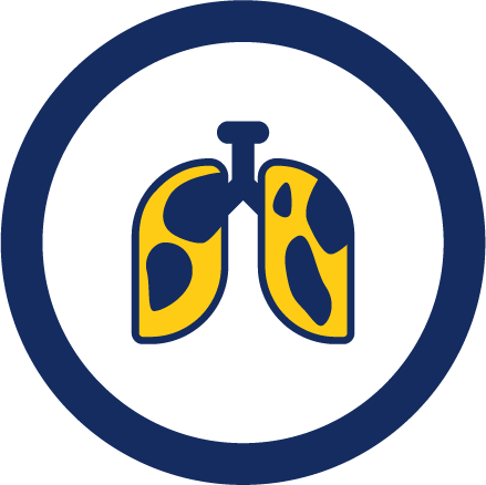 Complex pneumonia