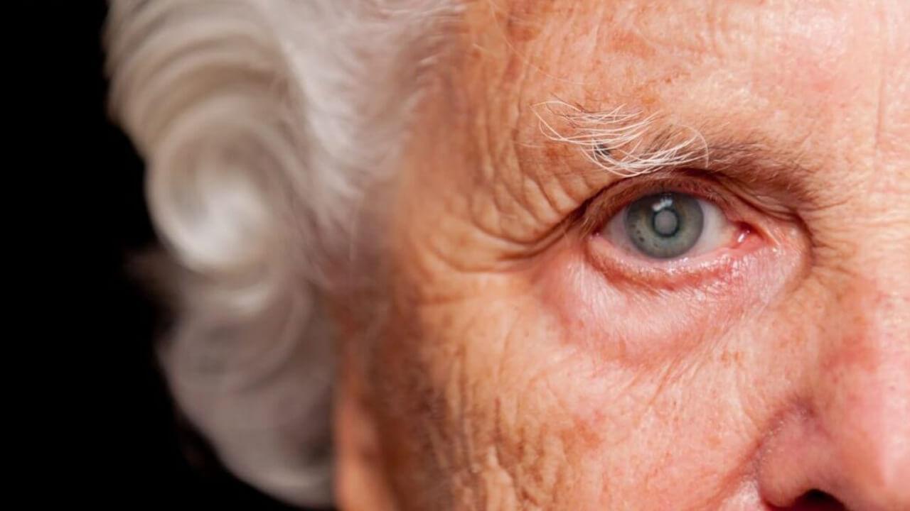 Catarata: ¿cómo se origina y cuáles son los síntomas de esta enfermedad ocular?
