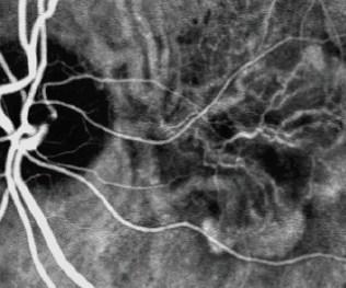 angiografrafia-fluorecencia-5